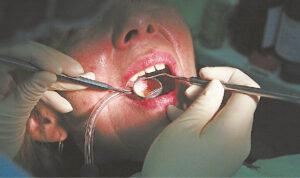 Darbus atnaujinantys stomatologai sutrikę dėl itin griežtų reikalavimų, o pacientai dėl įkainių.