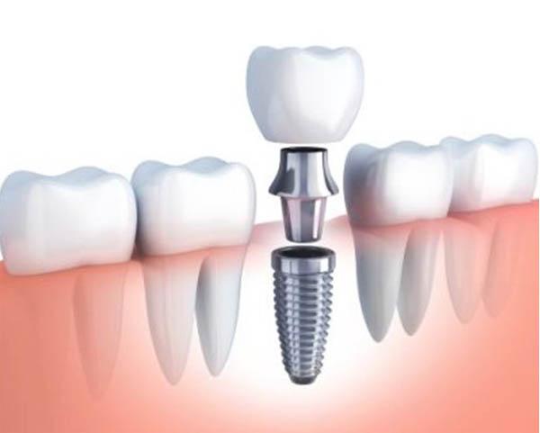 Kodėl netekus danties vertėtų pasvarstyti apie implantaciją?